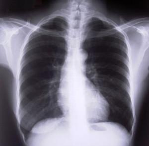 A TBC tünetei és terjedése